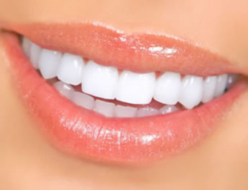 Teeth Whitening: From Least to Most Expensive